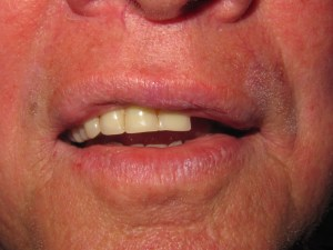 image of pt w/ broken front teeth on denture