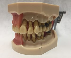 image of dental model with bone loss