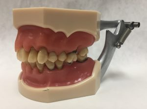 image of dental model - diseased gums