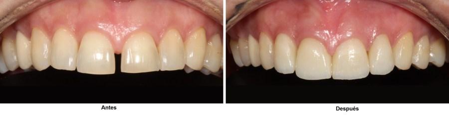 Diastema antes y después