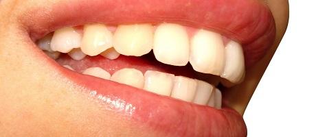 estética dental madrid clínica raul cortez