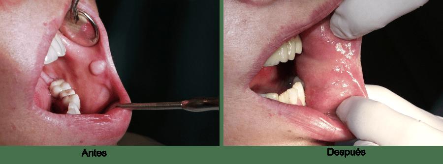 fibroma-mucosa-labial