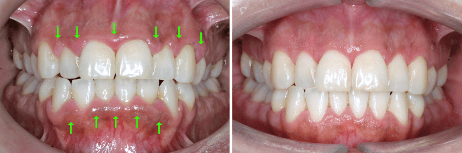 gingivitis-antes-despues