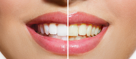 dientes blancos y sanos