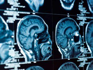 Welche Symptome deuten auf Hirntumoren bei Kindern hin?