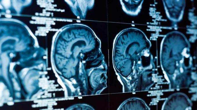 Which Symptoms Point to Brain Tumors in Children?