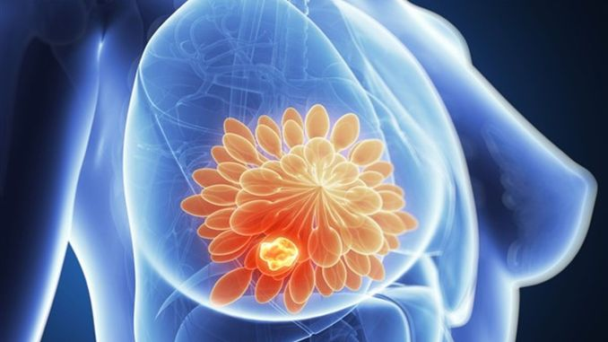 New Development in Breast Cancer Treatment! 6-Week Radiotherapy Down to 30 Minutes