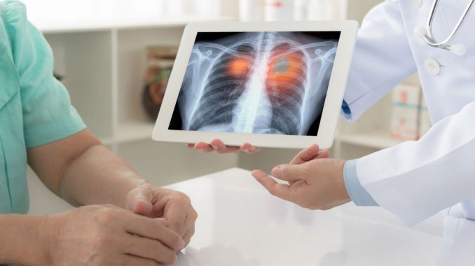 What is lung cancer, symptoms and treatment methods