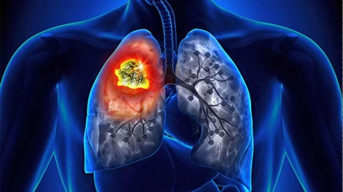 pulmonary rehabilitation for the side effects of lung cancer
