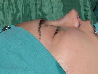 非手術性的鼻子美學可以通過填充來完成