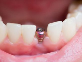 ما هي زراعة الاسنان ومن هي زراعة الاسنان وكيف تتم عملية زراعة الاسنان؟