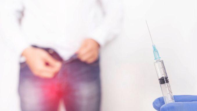 Was ist eine Varikozele? Was sind die Symptome und die Behandlung der Varikozele?