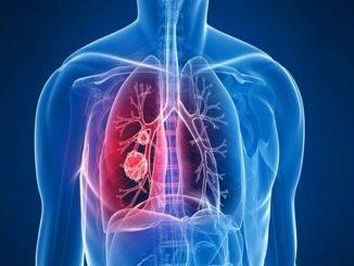 increase in diabetes also increased the incidence of liver cancer