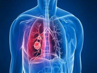 увеличение диабета также увеличивает заболеваемость раком печени