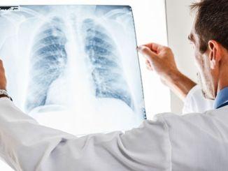 e cigarette increases the risk of covid many times
