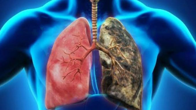 What is COPD? What are the symptoms of COPD? Can COPD be prevented by early diagnosis?