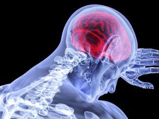 Pitkäaikainen covid lisää aivohalvauksen riskiä