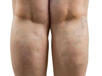 Suggestions to make life easier for varicose veins patients