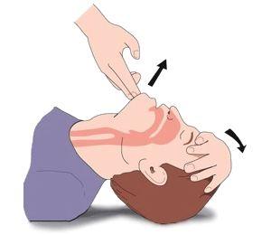 Head Back Cene Up Head Tilt Chin Lift