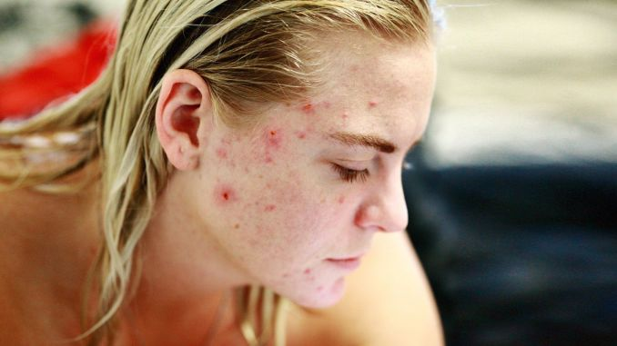 What you should do to get rid of acne and pimples