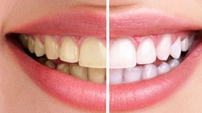 Pay attention to color change in teeth
