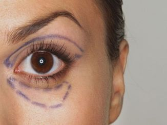 Non-surgical and comfortable aesthetics around the eyes