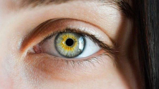 What is yellow spot disease, macrovision surgeries are increasing