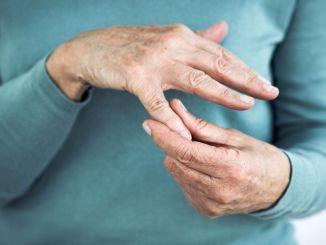 يعتبر تكلس اليد ، الذي يسبب ألمًا شديدًا ، أكثر شيوعًا عند النساء