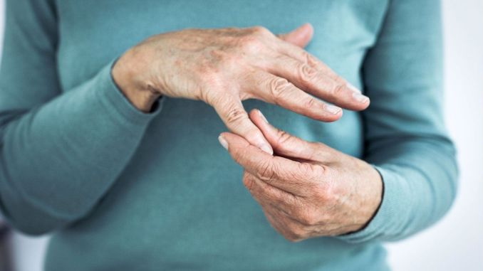 Hand calcification, which causes severe pain, is more common in women