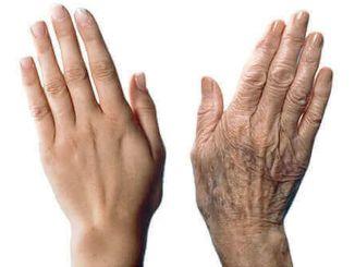 pripazite na naslonjene ruke