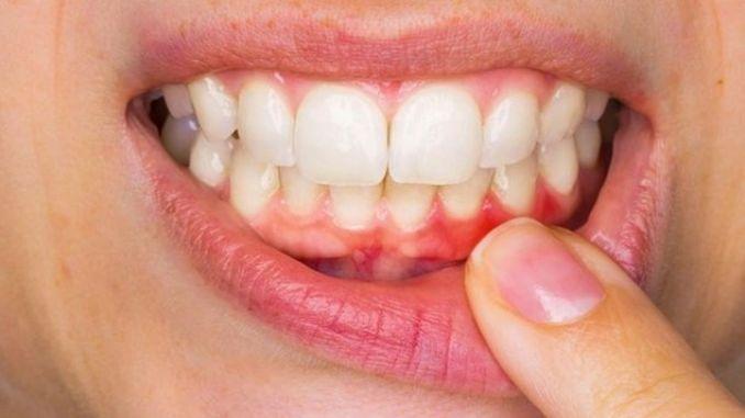 symptoms and treatment of gum disease