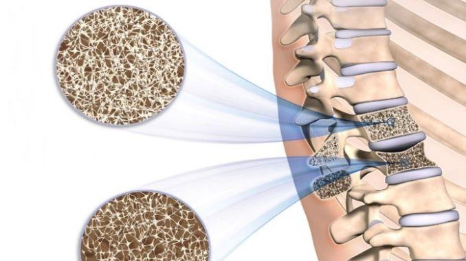 Lebensmittel gut für Osteoporose