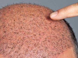 Обратите внимание на чувство боли и боли при трансплантации волос.