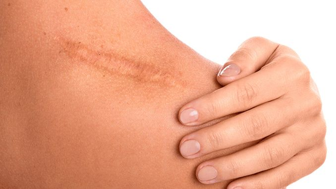 attention to burns and scars how to reduce the risk of scarring