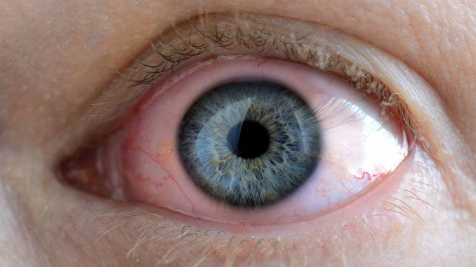 beware of severe eye catching