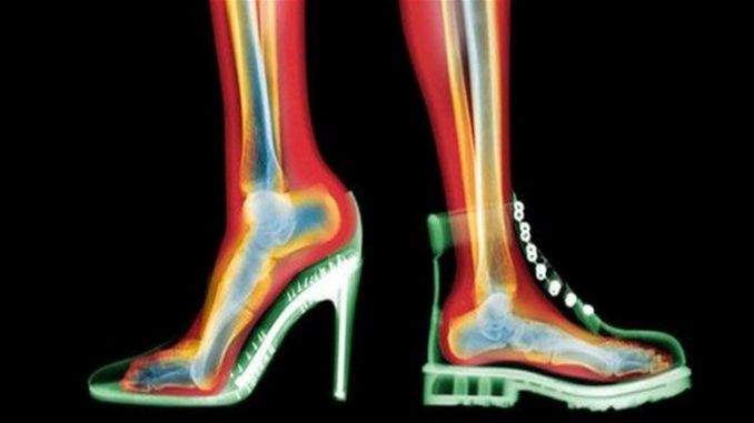 The dangers of wearing high heels every day