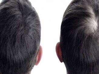 приоритет трансплантации волос - естественный внешний вид
