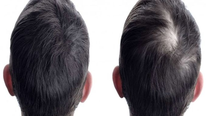 the priority of hair transplantation is natural appearance