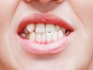 karpik tand