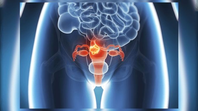 cervical cancer is the only cancer that can be prevented with a vaccine