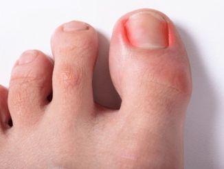 Was sind die Ursachen für eingewachsene Zehennägel?
