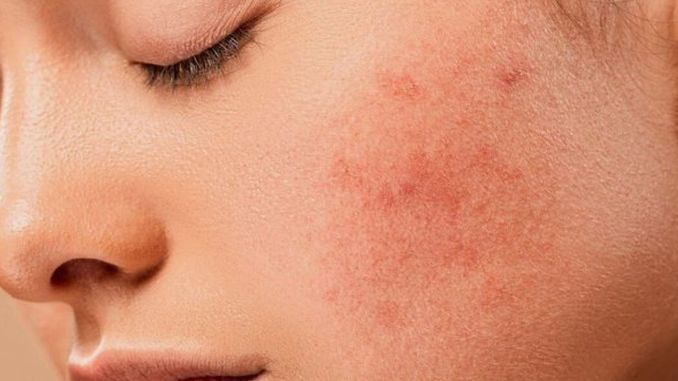 fatty foods increase acne