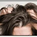 Remedios Caseros Para El Cuero Cabelludo Irritado Y Escamado