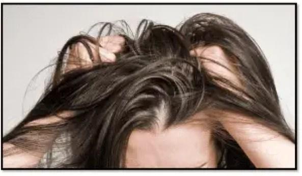 remedios para resequedad cuero cabelludo