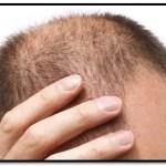 ¿Cuáles Son Los Diferentes Tipos De Alopecia?
