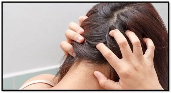 enfermedades en el cuero cabelludo