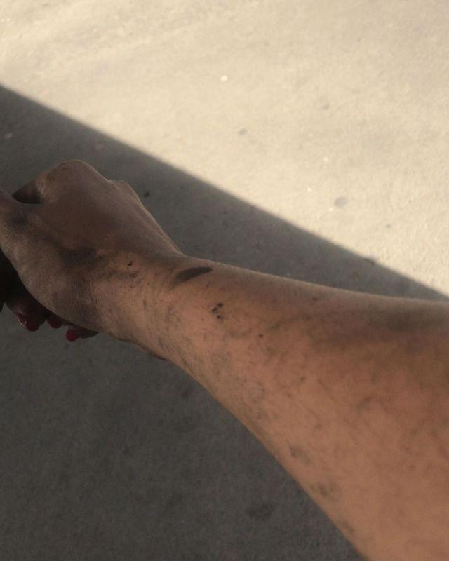 enfermeira arrisca vida salvar pacientes incendio hospital aracaju