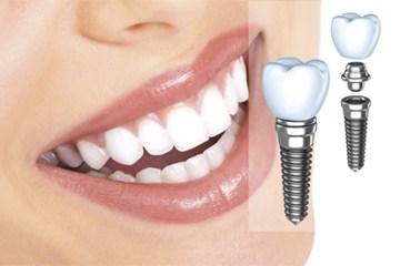 Имплантацию делают в центре хирургической стоматологии