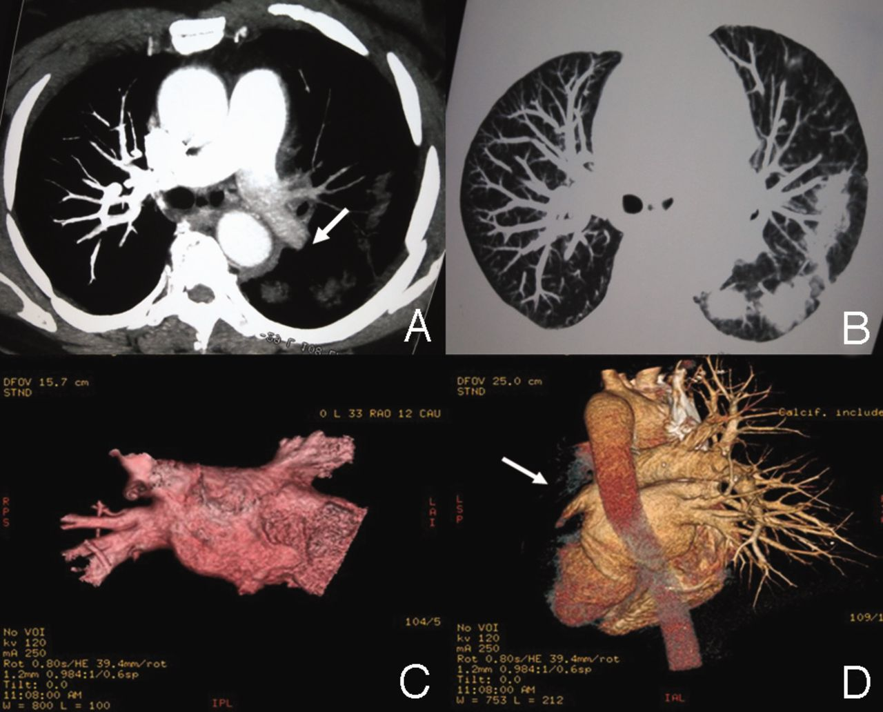 Pulmonary-Vein Stenosis Can Mimic Massive Pulmonary Embolism After Radiofrequency Ablation for Atrial Fibrillation   Respiratory Care