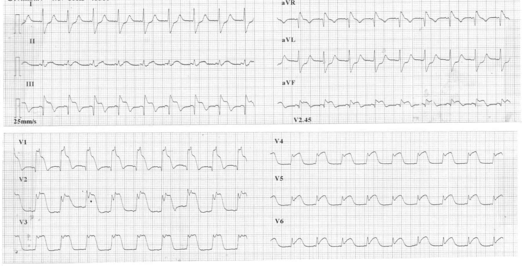 An Unusual Complication During Bronchoscopy Hypotension Global St Segment Elevation And Acute